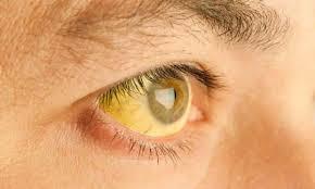 Ojos color amarillo
